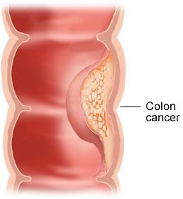 Cancerul Colorectal Vindecat Rapid prin Depistare Precoce | autogal.ro