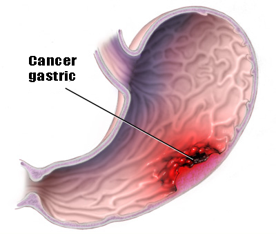 cancerul gastric se vindeca